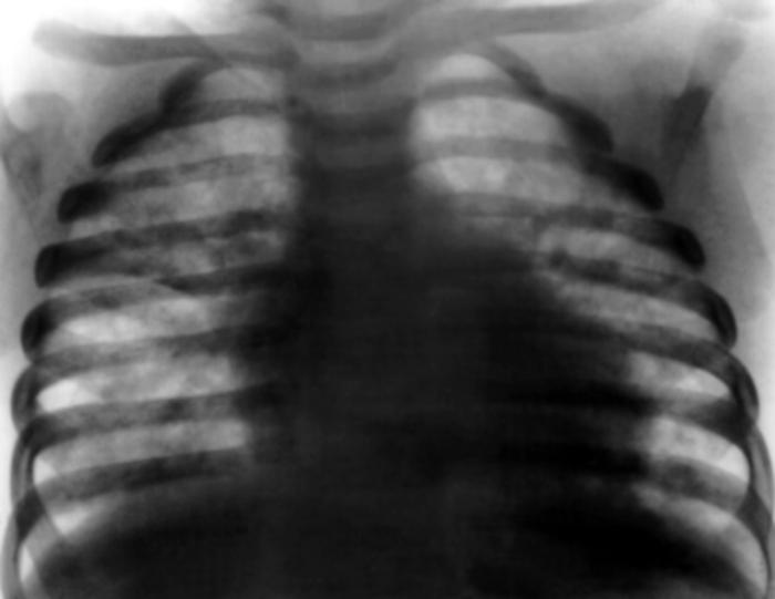 Учены разложили по полочкам пневмоцистную пневмонию