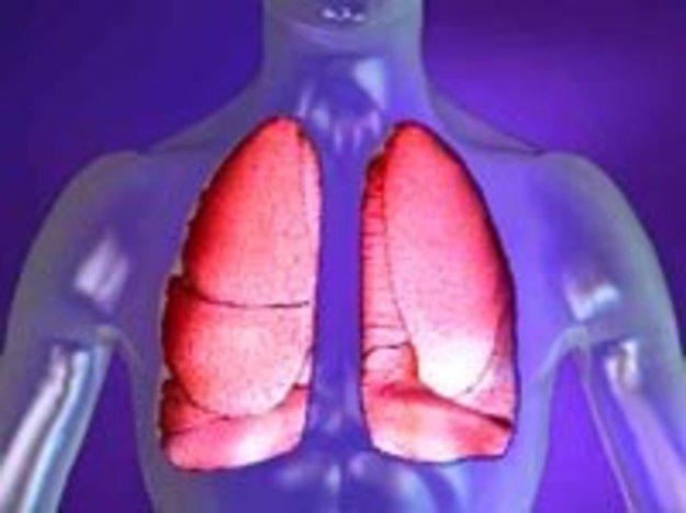 Из-за отсутствия необходимого медоборудования в развивающихся странах смертность от пневмонии гораздо выше