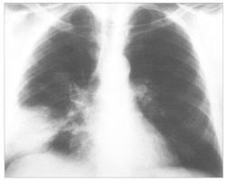 «Сложная» пневмония