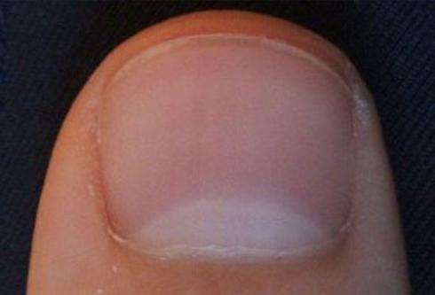 Грибок ногтей: виды, лечение, профилактика