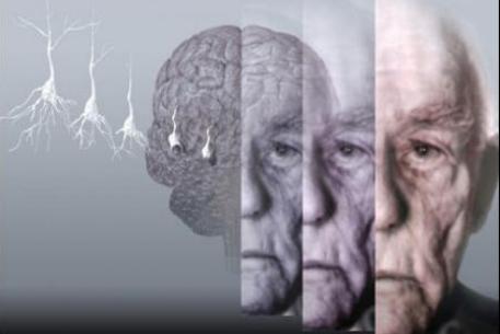 Болезнь Альцгеймера – приговор?