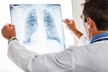 Что необходимо для лечения рака легких в Израиле?