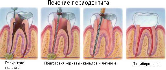 Периодонтит – лечим или удаляем