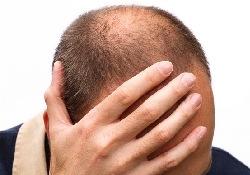 Облысение не приговор: вернуть волосы помогут компоненты иммунной системы