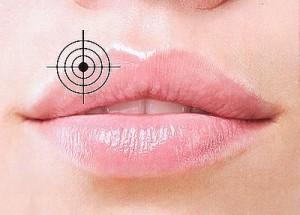 Герпес на губах: причины, симптомы, лечение