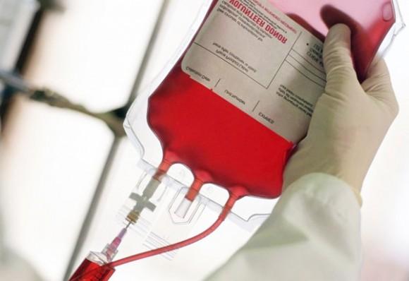 Переливание крови больным во время операции аортокоронарного шунтирования повышает риск развития пневмонии