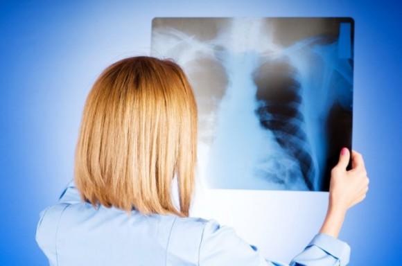 У детей основным патогеном, вызывающим пневмонию, является вирусная инфекция