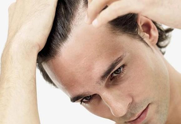"""Возвращение неповторимой красоты и густоты волос, клиника """"Hair For Ever"""""""