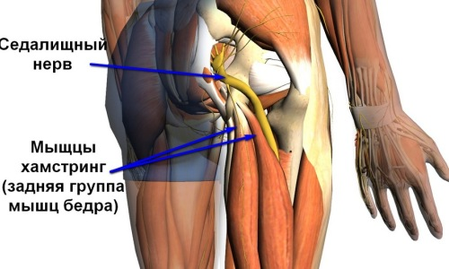 Причины и способы лечения защемления седалищного нерва