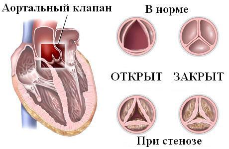 Пролапс митрального клапана. Лечение и причины
