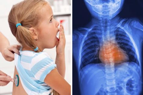 Обструктивный бронхит у детей: симптомы и методы лечения