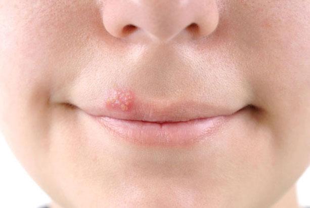 Вся правда о герпесе на губах