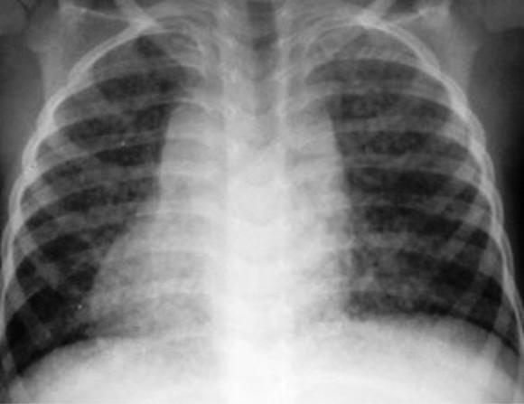 8 тысяч кузбассовцев заболели пневмонией с начала года