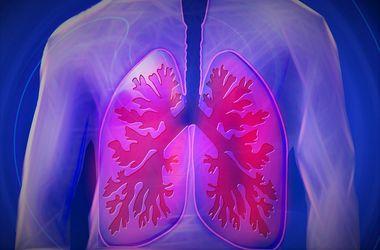 Досье на болезнь: из-за чего и как возникает пневмония