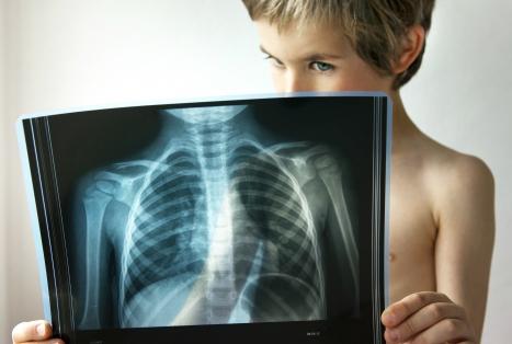 Пневмония у детей: симптомы, лечение и профилактика воспаления легких