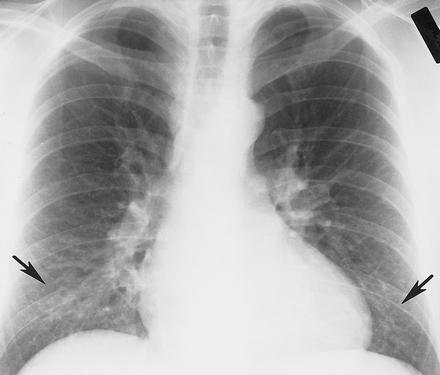 Новая форма атипичной пневмонии захлестнула КНР