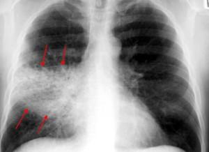 Воспаление легких: возможные осложнения