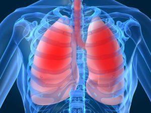 Как бактерии пневмонии могут поставить под угрозу здоровье сердца