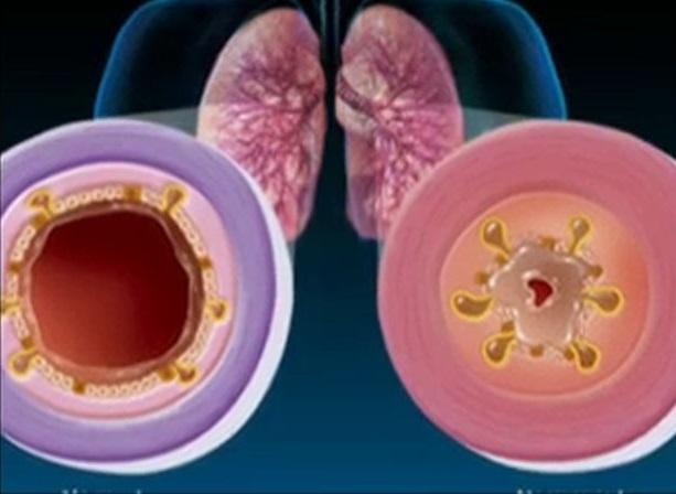 Возможно ли вылечить бронхит без антибиотиков