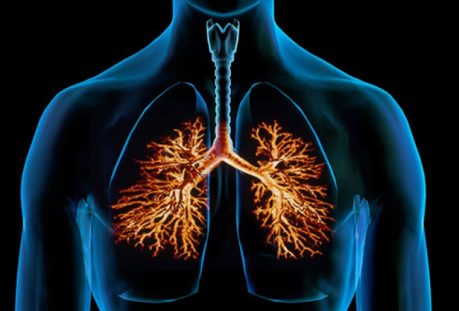 Бронхит и астма увеличивают риск раковых заболеваний
