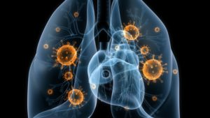 Лечение пневмонии ванкомицином