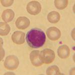 Лимфоциты: главные клетки иммунной системы