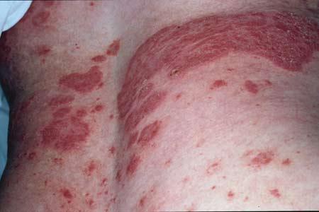 Псориаз: лечение и диагностика
