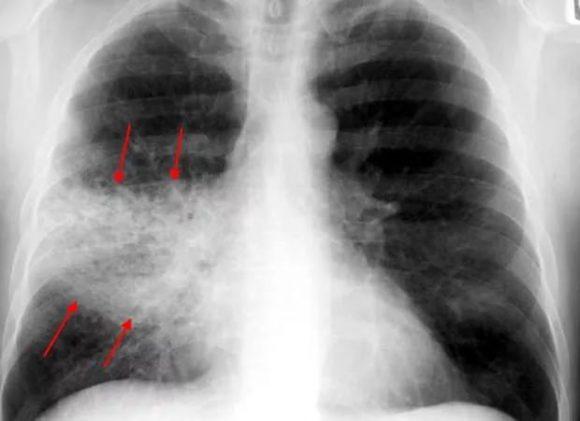 Прием успокоительного средства может стать причиной пневмонии