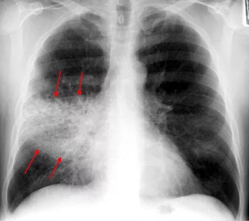 При деменции прием ИПН является независимым фактором риска развития пневмонии
