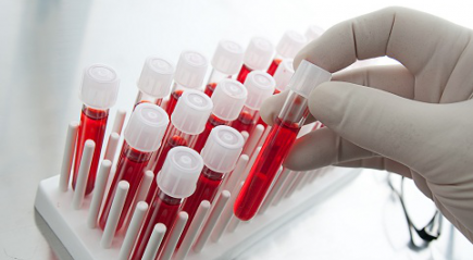 Расшифровка и нормальные показатели анализа крови