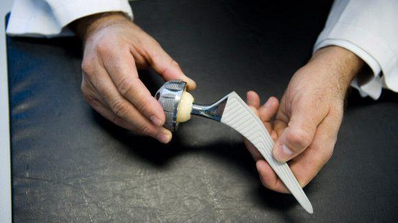 Как проводится операция по замене сустава бедра
