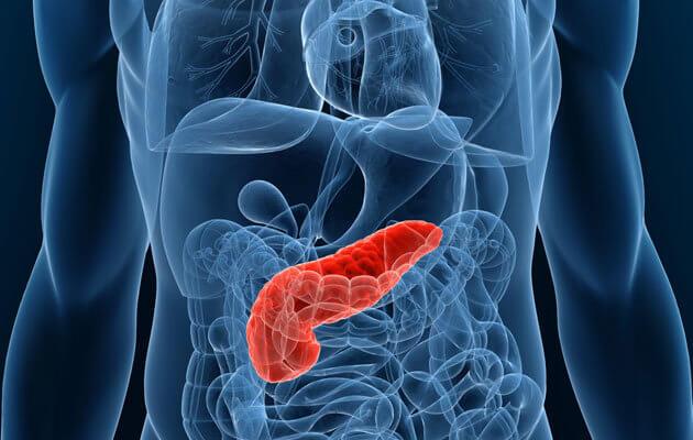 От чего возникает рак поджелудочной железы?