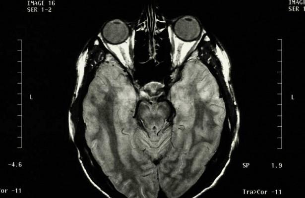 Уже на ранней стадии ВИЧ-инфекция негативно воздействует на мозг
