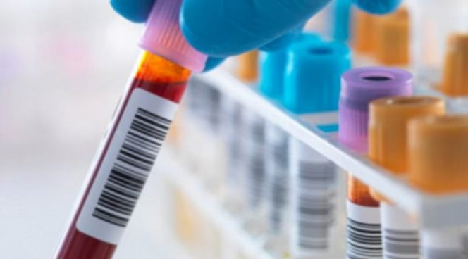 Новое понимание ВИЧ позволит создать лекарство от вируса