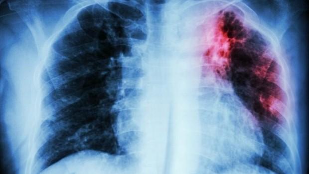 Ученые обнаружили соединение, которое поможет бороться с туберкулезом