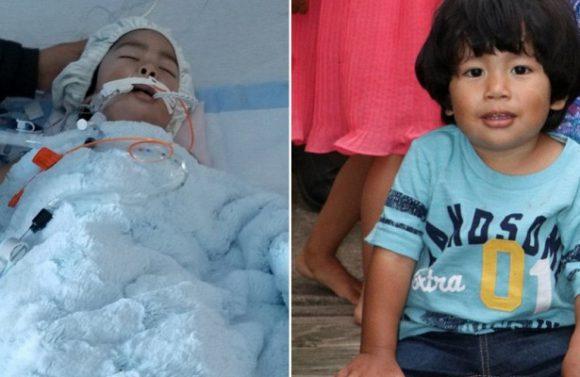Обычный кашель у ребенка обернулся болезнью, пожирающей кости