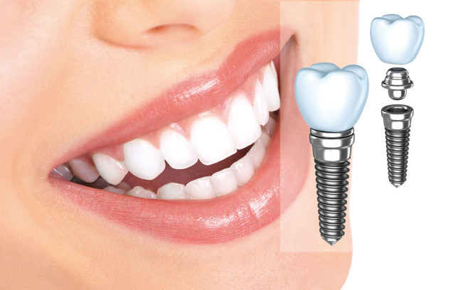 Протезирование зубов. Преимущества и польза зубных имплантатов в современной