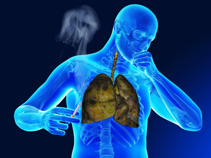 Как лечить бронхит без антибиотиков?