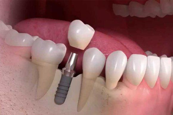 Протезирование зубов. Соображения и обратная инженерия зубных имплантатов