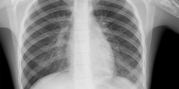 По каким симптомам можно распознать пневмонию?