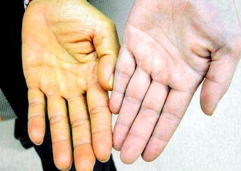 Механическая желтуха: причины и симптомы заболевания