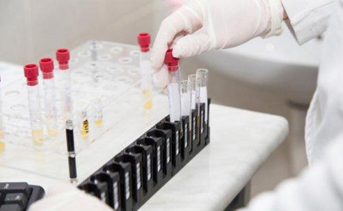 Прививки от гриппа защищают от инсультов