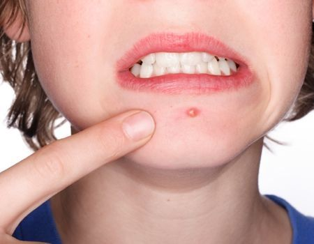 Чем опасны распространенные кожные инфекции
