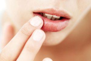 Простуда на губах — симптомы и лечение