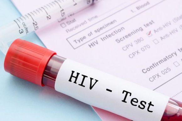 ВИЧ. Что делать при положительном результате
