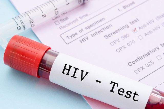 Установление диагноза ВИЧ