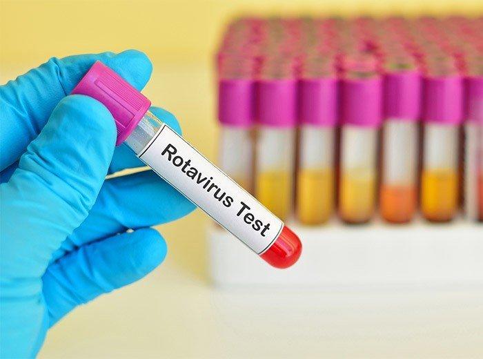 Ротавирусная инфекция — диагностика и лечение