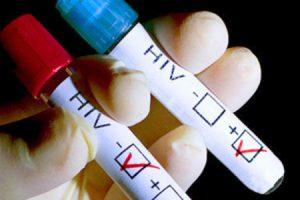 Ученые выяснили, откуда на самом деле взялся ВИЧ