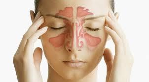 Как ослабить симптомы гайморита народными средствами