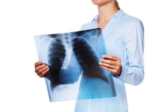 Туберкулёз: как вылечить, симптомы и признаки